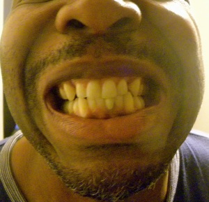 My front teeth, including slightly darker lower tooth (right/my left), two root canals later, May 14, 2012, (Donald Earl Collins).