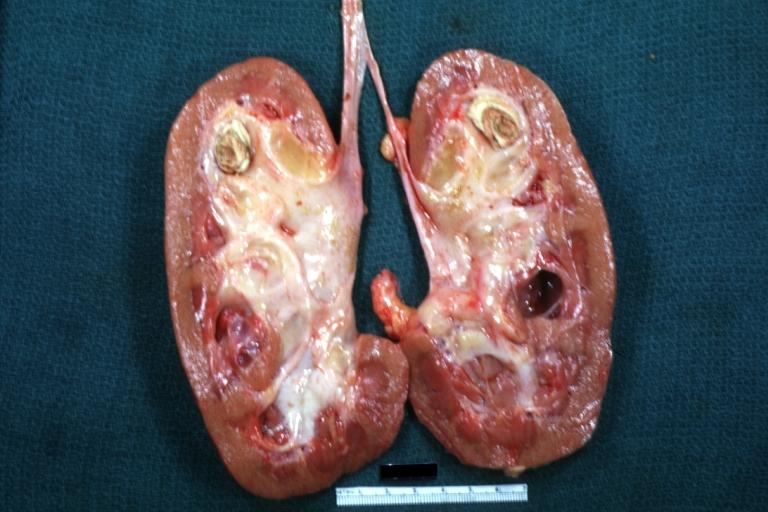 Kidney stones MedlinePlus Medical Encyclopedia