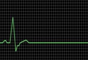 Flatlining EKG, March 2010. (http://potashinvestingnews.com/).