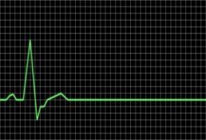 Flatlining EKG, March 2010. (http://potashinvestingnews.com/).