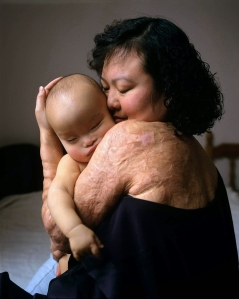 Kim Phuc with her then infant son, Ontario, Canada, 1995. (Joe McNally/Time & Life Pics). Qualifies as fair use under US copyright laws -- photo illustrative of subject/ for educational purposes only.